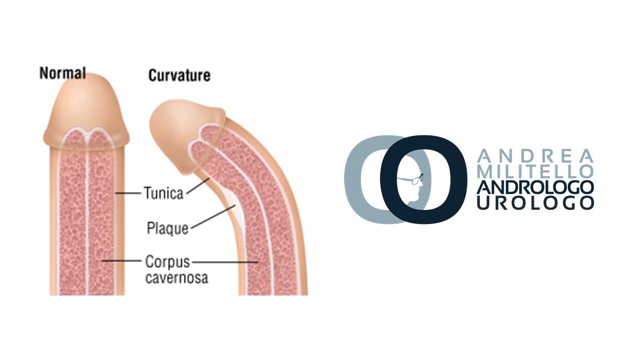 come si ottiene unerezione dopo lintervento chirurgico alla prostata